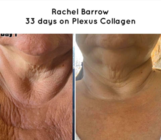 Plexus Collagen